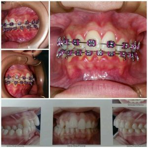 Ultra Sorriso Clínica Odontológica - Galeria